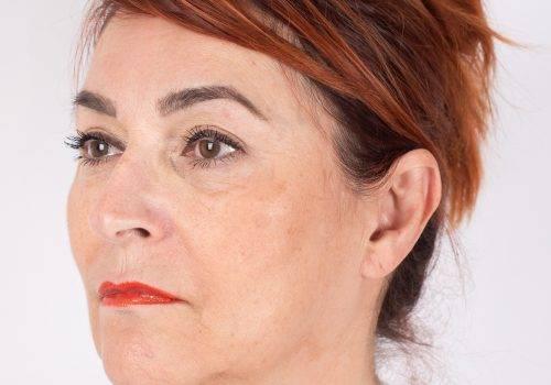 Botox en fillers na