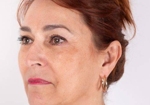 Botox en fillers voor