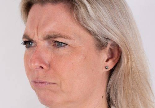 Botox fronsrimpel Breda voor