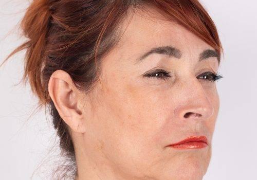 Botox kraaienpootjes na