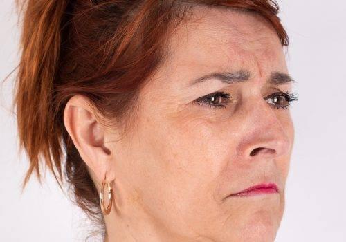 Botox kraaienpootjes voor