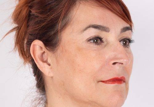 Fillers en Botox ervaringen