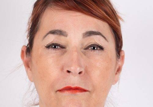 Fronsrimpel met Botox resultaat