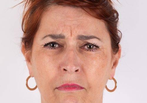 Fronsrimpel met Botox behandelen