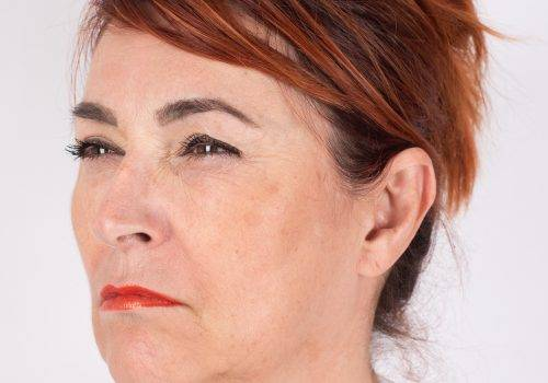 Fronsrimpel na Botox