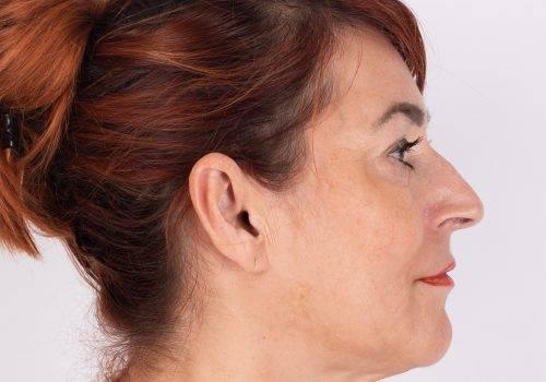 Hangende mondhoeken na
