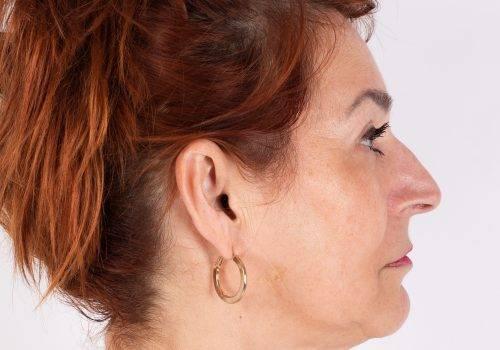 Hangende mondhoeken voor