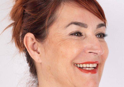Lachrimpels Botox behandeling met Azzalure resultaat