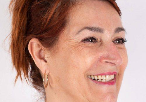 Lachrimpels Botox behandeling met Azzalure