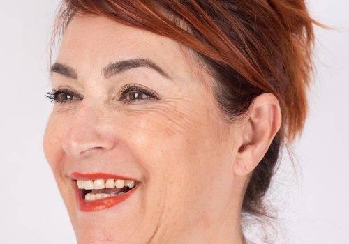 Lachrimpels kraaienpootjes na Botox
