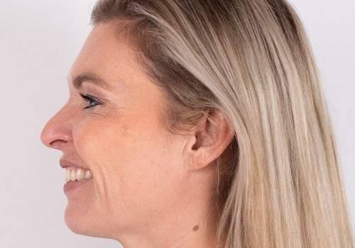 Lachrimpels met Botox na