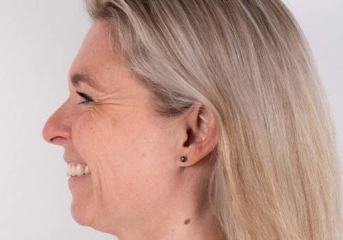 Lachrimpels met Botox voor