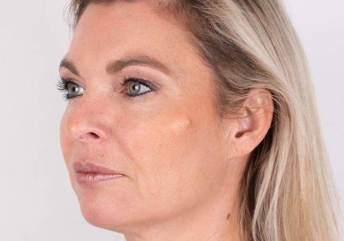 Lip fillers - hoge jukbeenderen