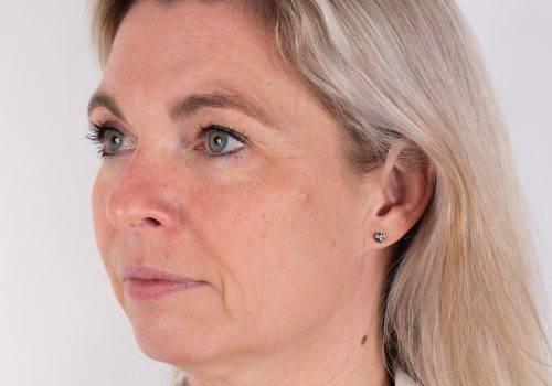 Lip fillers Breda - hoge jukbeenderen