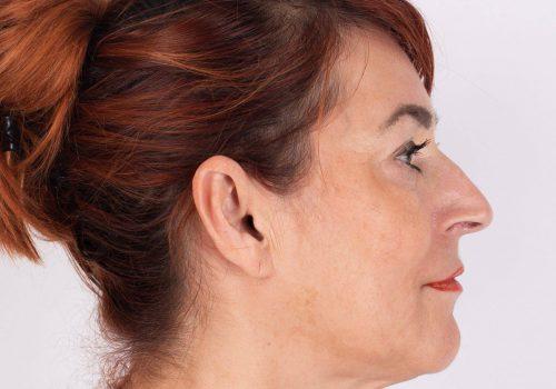 Lippen opvullen ervaringen