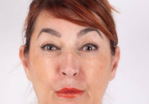 Rimpels bovenlip - rokerslijntjes Botox voor en na