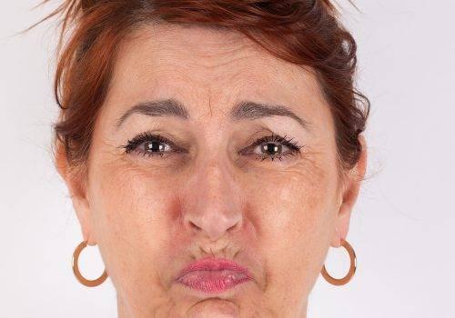 Rimpels bovenlip-rokerslijntjes- Botox voor en na