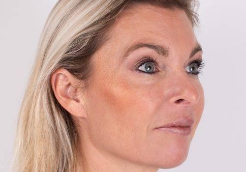 Voorhoofdrimpels Botox Breda na