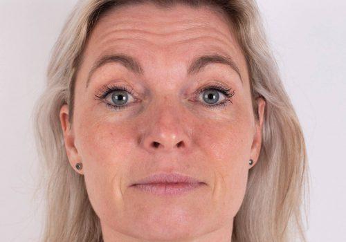 Voorhoofdsrimpels Botox Breda voor