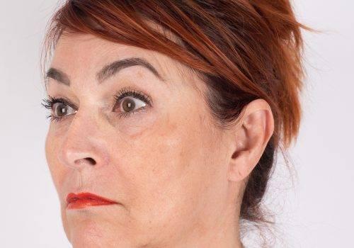 Voorhoofdsrimpels Botox ervaringen