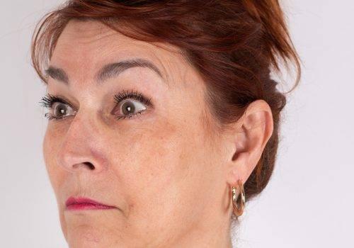 Voorhoofdsrimpels Botox