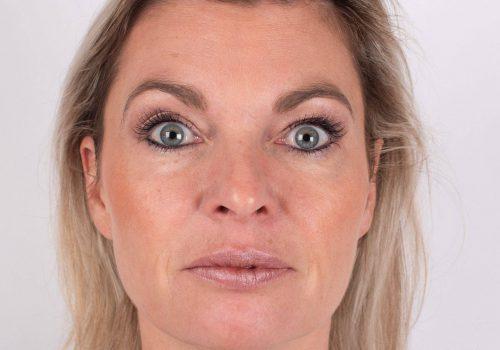 Voorhoofdsrimpels Botox Breda resultaat
