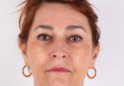Wangen en jukbeenderen voor behandeling
