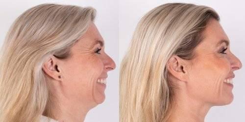 Resultaat voor- en na behandeling fronsrimpel en kraaienpootjes