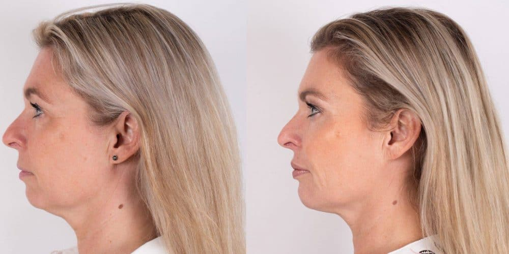 Profiel gezicht Janka voor en na