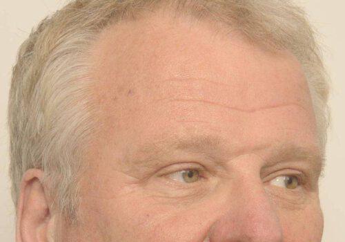 Wenkbrauwlift met ooglidcorrectie na bij man