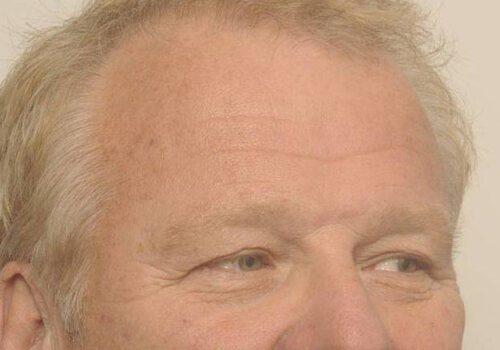 Wenkbrauwlift met ooglidcorrectie voor bij man