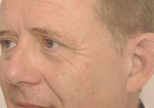 Resultaat ooglidcorrectie Jan - links