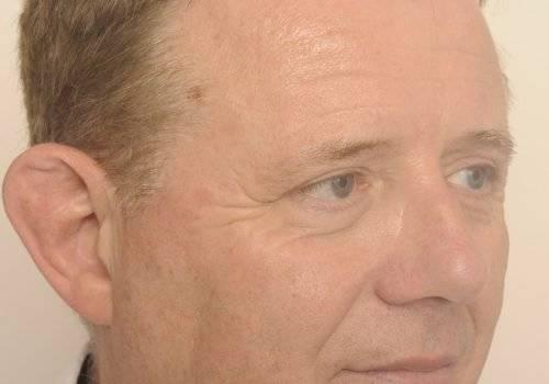 Resultaat ooglidcorrectie Jan - rechts