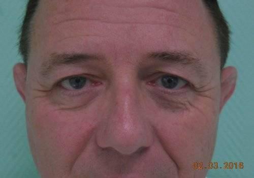 Jan ooglidcorrectie voor