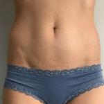 Liposuctie buik na behandeling