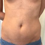 Liposuctie buik voor