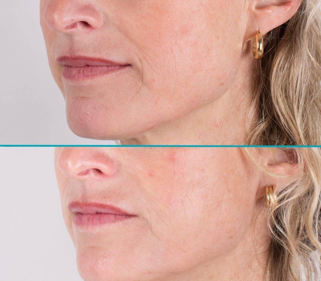 Resultaat behandeling neus-lippenplooi