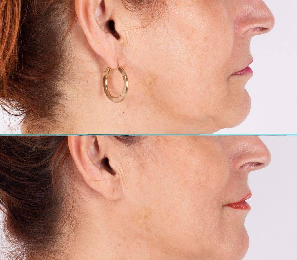 Resultaat behandeling hangende mondhoeken Marlies