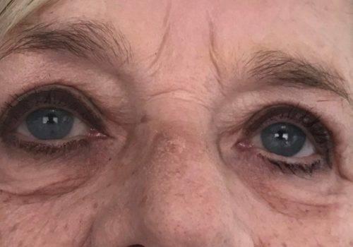 Anoniem - na behandeling hangende oogleden - Maarten Doornaert