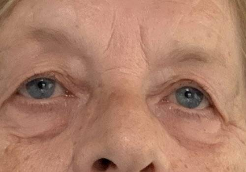 Anoniem - voor behandeling hangende oogleden - Maarten Doornaert