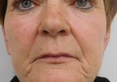 Carin Hangende mondhoeken voor de behandeling - Elizia Soares