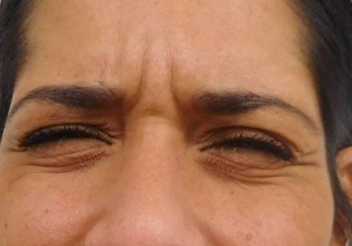 Ellen voor behandeling fronsrimpel - Elizia Soares