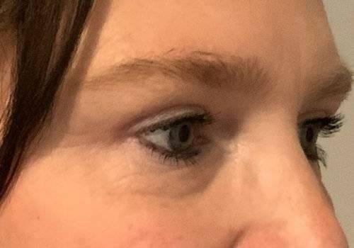 Resultaat behandeling hangende oogleden - Maarten Doornaert