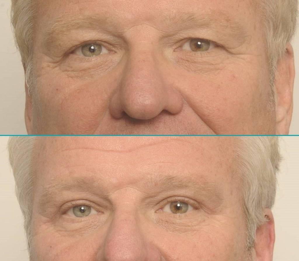 Resultaat behandeling wenkbrauwlift - Fred