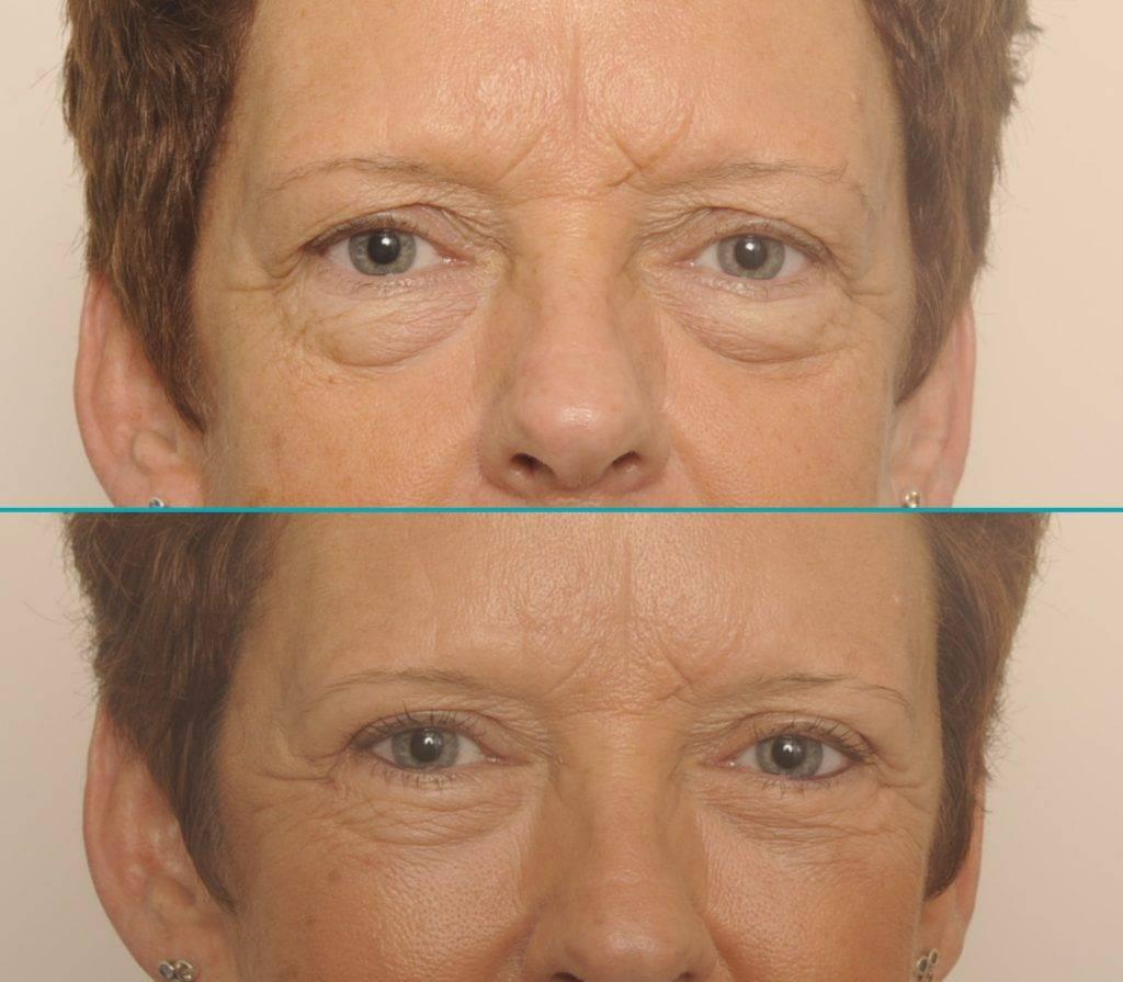 Resultaat behandeling vermoeide ogen - Ine
