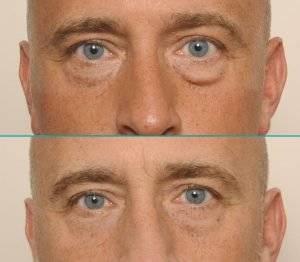 Resultaat ooglidcorrectie mannen - Jeroen Smits