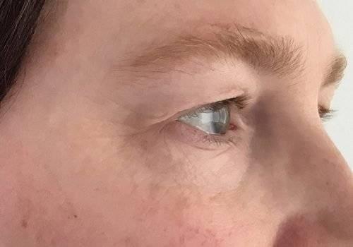 Voor behandeling hangende oogleden - Maarten Doornaert
