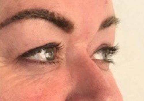 Voor behandeling hangende oogleden - anoniem - maarten doornaert