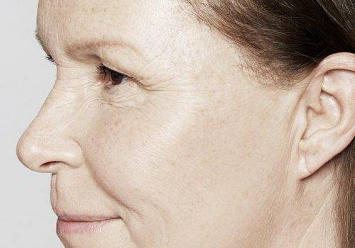 Katrina 54 jaar - Restylane Skinboosters na