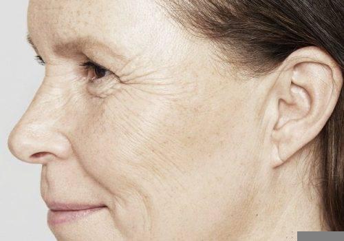 Katrina 54 jaar - Restylane Skinboosters voor